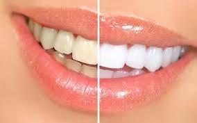 Zähne Vorher/ Nachher Vergleich